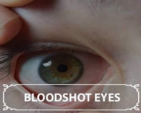 Terakhir kurang minum air putih juga bisa menyebabkan masalah pada mata nih. Salah satunya adalah mata nampak pucat begini. Makanya pulsker, sering-seringlah minum air putih secara cukup dan jangan berlebihan setiap hari ya agar kesehatan kita terjaga.