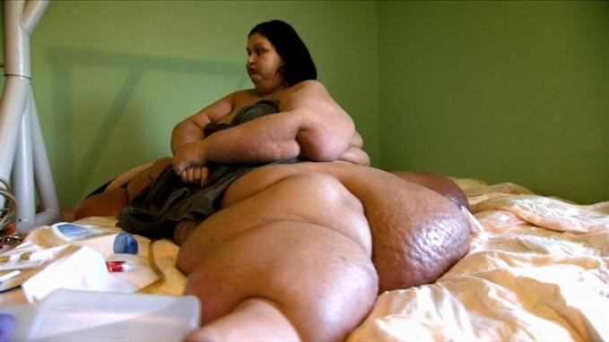 Beginilah kondisi Mayra saat masih mengalami obesitas pulsker. Lemaknya nampak disana-sini ada di tubuhnya, dan beratnya mencapai hampir setengah ton lho pulsker.
