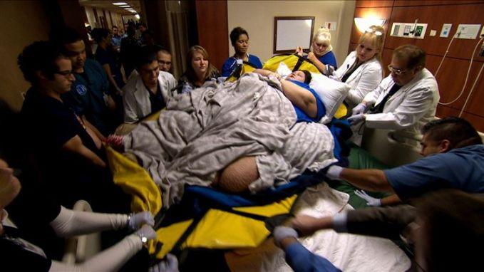 Akibatnya, dia harus dibawa kerumah sakit untuk mendapatkan perawatan. Sekaligus untuk menyedot lemak di tubuhnya. Untuk mengangkat tubuh wanita ini saja, dibutuhkan hampir 10 orang lho pulsker saking beratnya.