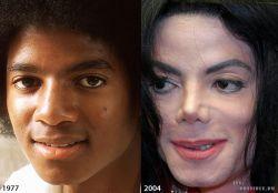 9 Transformasi Wajah Michael Jackson Sebelum dan Sesudah Operasi yang Bikin Pangling
