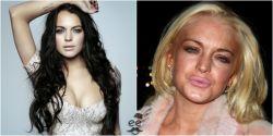 10 Perubahan Drastis Wajah Selebritis Hollywood Sebelum dan Setelah Memakai Obat Terlarang