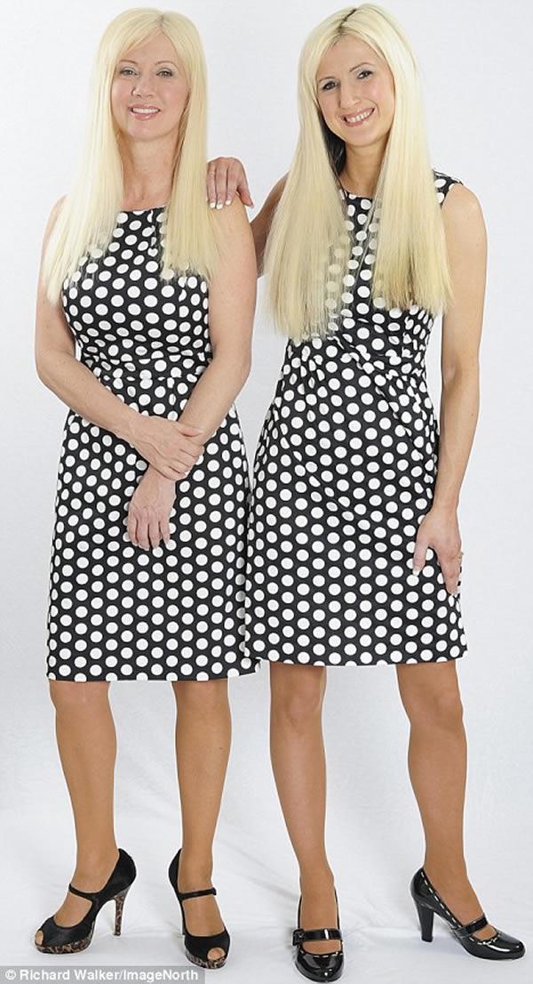 Mungkin kalian mengira sosok Janet dan Jane Cunliffe ini kembar?. Bukan pulsker, mereka adalah ibu dan anak ternyata. Sang ibu, Janet yang berusia 50 tahun menghabiskan dana 13.000 dolar untuk operasi plastik agar terlihat awet muda kayak gini nih.