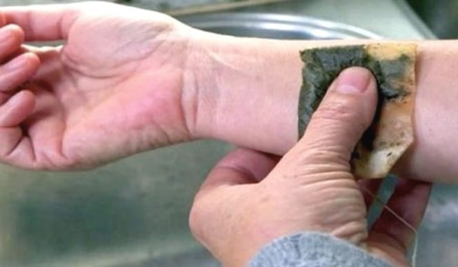 Teh celup hitam yang sudah terpakai juga bisa digunakan untuk meredakan luka bakar ringan. Hal ini karena teh hitam mengandung asam tanat yang berkhasiat meredakan luka bakar. Saat teh hitam ditempelkan ke kulit, asam tanat akan memicu pembekuan sel kulit yang terbakar tersebut.
