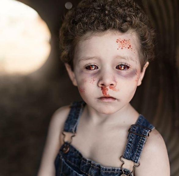 Tatapan yang sayu dan sedih ini membuat anak ini terlihat sangat menyeramkan.