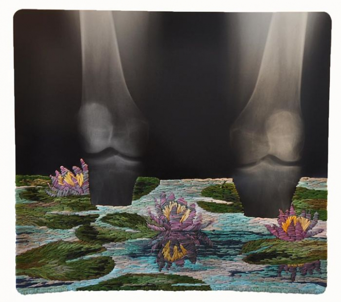 Di tangannya, foto X-ray yang biasanya jadi salah satu hal yang identik dengan medis disulapnya jadi karya seni menakjubkan.