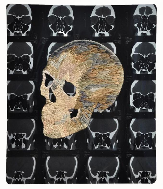 Keren kan Pulsker karya menggunakan foto x-raynya?. Ini membuktikan kalau x-ray nggak sekedar untuk keperluan medis dan sains saja, melainkan seni juga gengs.