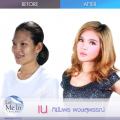Foto Before-After Wanita Thailand Setelah Operasi Plastik, Beda Nggak?