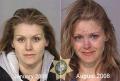 Perubahan Fisik Seseorang Sebelum dan Setelah Mengkonsumsi Narkoba, Ngeri Banget