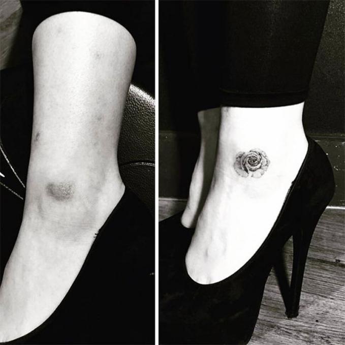 Bekas luka gosong jadi tak terlihat dengan tato bunga mawar yang simpel.