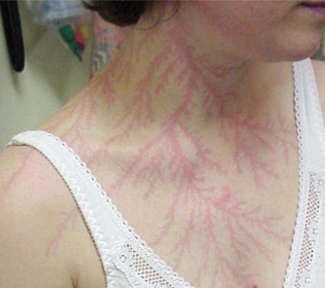 Bukan bekas kerokan, ini adalah kulit seorang wanita yang terkena petir.