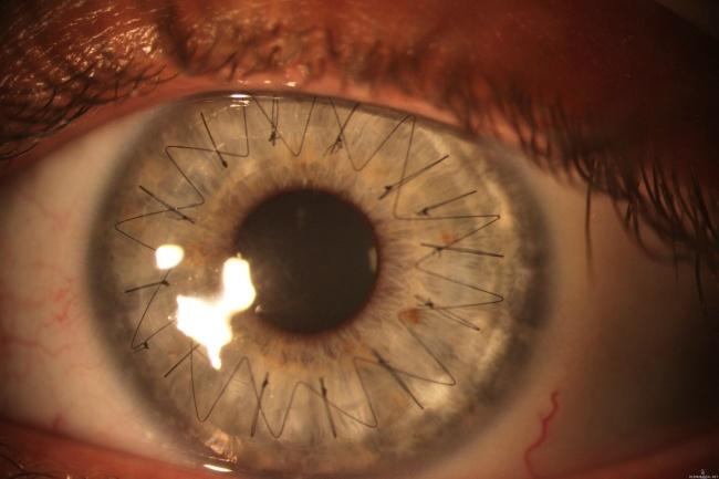 Ini adalah potret jahitan pada mata seseorang yang menjalani transpantasi kornea.