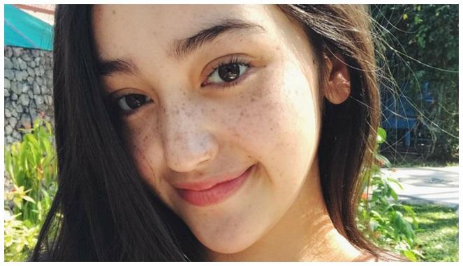 Setuju kan kalau wajah Ranti Maria jadi keliatan imut banget dengan freckles makeup?