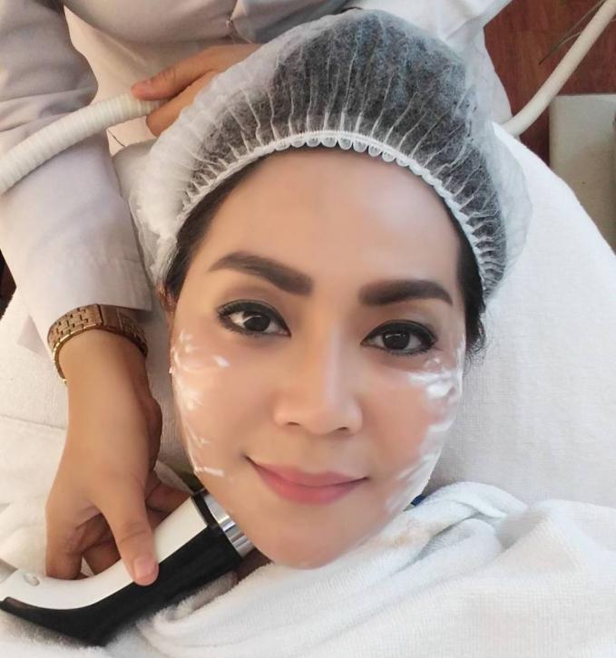 Thessa Kaunang ungkap rahasia cantiknya dan terlihat lebih tirus karena perawatan dengan Cryo yang memasukkan serup ke dalam lapisan kulit.