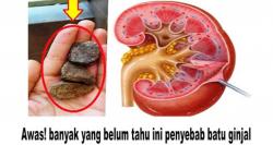 Batu ginjal - Gejala, penyebab dan mengobati