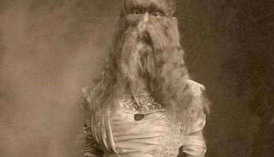 Alice Elizabeth Doherty Minnesota, Woolly Girl Lahir pada 14 maret 1887 di Menneapolis Alice memiliki wajah yang ditumbuhi rambut hingga wajahnya menyerupai seekor singa. Kelainan yang dideritanya ini dinamakan hypertrichosis lanuginose di mana bulu bula halus pada wajah tumbuh tak terkontrol. Padahal sebelumnya rambut rambut hanya tumbuh di sekitar tengkuk alice. Kemudian pada umur 5 tahun rambut rambut di wajahnya mulai tumbuh sekitar 9 inci sampai ia beranjak dewasa. Alice Doherty memulai karirnya di dunia pertunjukan sejak usia 2 tahun. Dan dimenejeri oleh ibunya sendiri . Keunikannya inilah yang membuat gadis riang ini terkenal . Alice sering membuat pertunjukan solo hingga pada 1800 ia memutuskan mundur dari dunia entertainment yang sebenarnya bukan keinginannya sendiri.