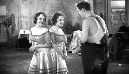 Daisy dan Violet Hilton Mereka adalah saudara kembar siam dari Inggris lahir pada tanggal 5 februari 1908. Pinggul mereka saling menyatu. Dan uniknya mereka hanya memiliki satu organ penting untuk menyeimbangkan kehidupan kedua tubuh itu. Sejak usia anak anak mereka sudah bergabung dalam acara freak show di daerah tempat tinggalnya. Kepopuleran mereka mulai naik saat kembar siam cantik ini dipamerkan dalam pameran di Eropa sampai akhirnya mereka melakukan sideshow tour di US dan menjadi pemain di American Burlesque Circuit pada tahun 1920-1930 an. Sayangnya kisah cinta mereka tidak berakhir dengan bahagia. Setwlah kembaran ini menikah kontrak dengan dua pria gay dan rahadia mereka bocorke publik. Akhirnya mereka memutuskan.untuk hengkang dari dunia sirkus dan menghabiskan hidupnya di sebuah rumah dan bekerja di sebuah toko. Lebih tragis lagi pada tahun 1969 polisi menemukan mereka dalam kedaan tak bernyawa karena virus flu Hongkong.