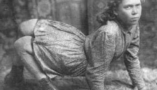 Ella Harper, The Camel Girl Ella Harper adalah seorang gadis yang dikenal dengan The Camel Girl lahir pada tanggal 5 januari 1870,di Summer County, Tennesse. Gadis remaja ini memiliki kelainan pada kedua kakinya. Kedua lutut gadis ini terbalik sehingga ia harus berjalan dengan kedu kaki dan tangannya. Karena itulah dia disebut The Camel Girl atau gadis unta. Pada tahun 1886,ia menjadi bintang dalm sebuah sirkus WH Harriss Nickel Plate Circus dan fotonya selalu ada dikoran setempat. Ella menjadi pemain sirkus dengan bayaran tertinggi waktu itu sekitar $200 per minggu.