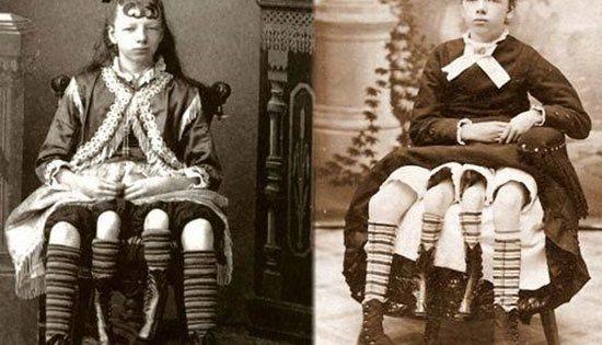 Myrtle Cobin, Four Legs Girl Myrtle Cobin atau Josephinne Myrtle Cobin, lahir pada 12 mei 1868 di Lincoln County Tennesse. Myrtle lahir dalam keadaan yang sangat unik. Yaitu punya ,4 kaki. Yang 2 kakinya normal, yang 2 lagi lebih kecil yang terletak diantara 2 kaki normalnya. Dan anehny lagi semua kakinya ini bisa berfungsi walaupun kedua kaki tengah ini lebih lemah dri kaki normalnya. Di dalam dunia medis keadaan Myrtle ini disebut dengan Posterior Dichotomy. Di usianya yang ke 13 ia memulai katirnya di dunia sirkus. 6 tahun kemudian ia berhenti bekerja dan menikah dengan suaminya di usia ke 19 tahun dan melahirkan 5 orang anak.