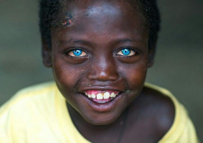Mata yang biru mempesona.