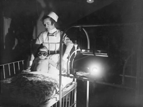 Seorang balita yang menjalani perawatan di ruang medis. Matanya harus ditutup gengs supaya nggak silau terkena sinar.