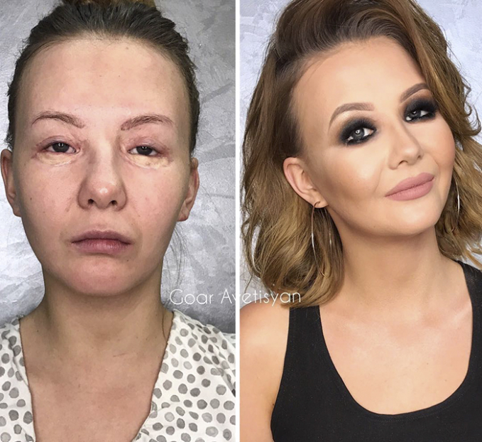 Sementara Vrada, mengalami 15 kali operasi mata yang membuat wajahnya sedikit nampak sayu. Sekarang, dia nggak nampak sayu lagi ya.